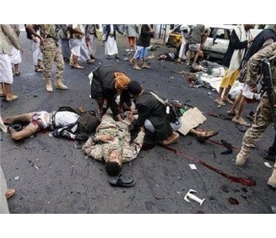 عشرات القتلى صنعاء 152907012015091158.jpg